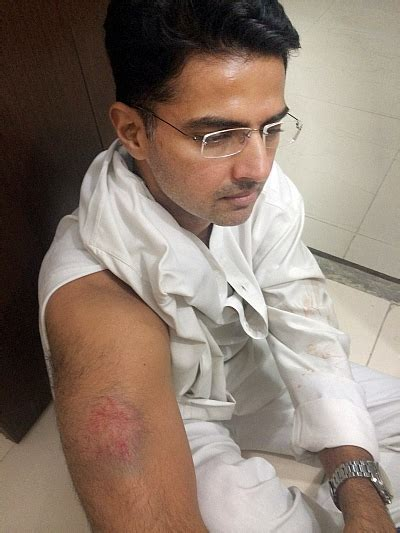Sachin Pilot injured in police lathicharge - Rediff