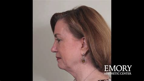 Can You Have a Neck Lift Without a Face Lift at Emory
